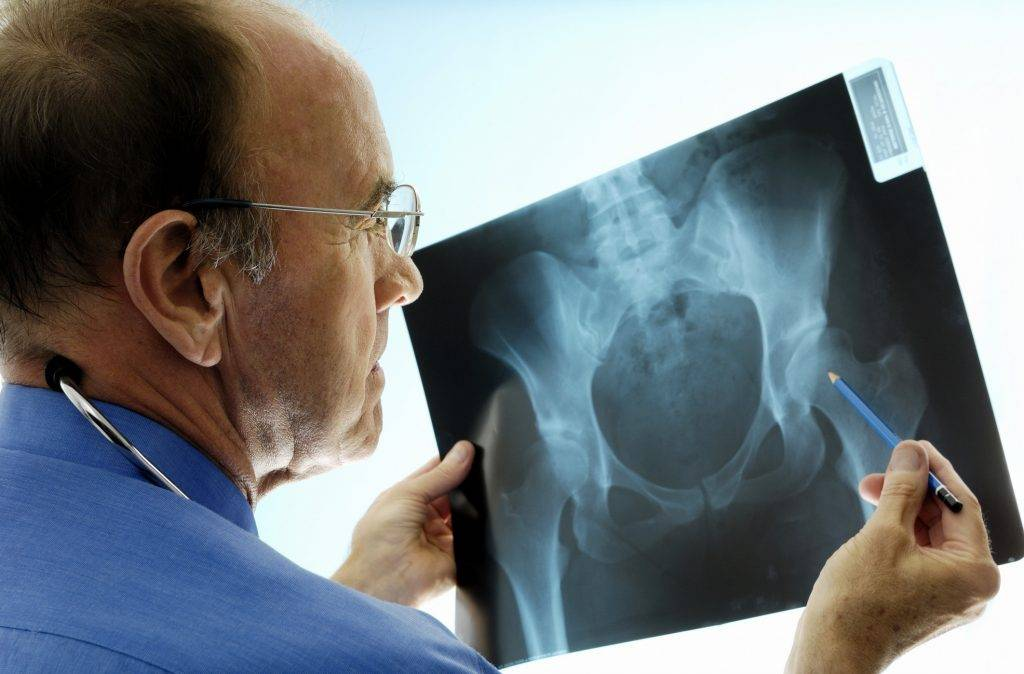 Orthopedic surgeon looking at X-ray