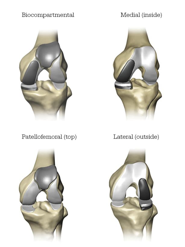 Knee Replacement Types